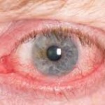 Chlor Allergie gerötete Augen