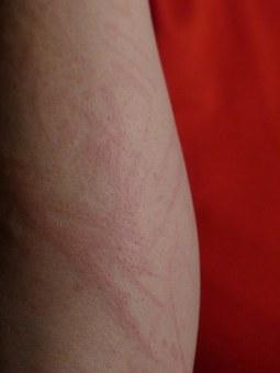 Mückenstich ähnlicher ausschlag