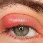Allergie geschwollene Augen