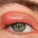 Allergie Symptom geschwollene Augen Pollenallergie