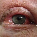 Auge Allergie Konjunktivitis