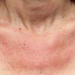 Bild zu den Symptomen der Sonnenallergie Hautausschlag Dekoltee