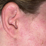 Bild zur Sonnenallergie Hautausschlag Gesicht