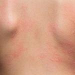 Bild zur Sonnenallergie Hautausschlag Rücken