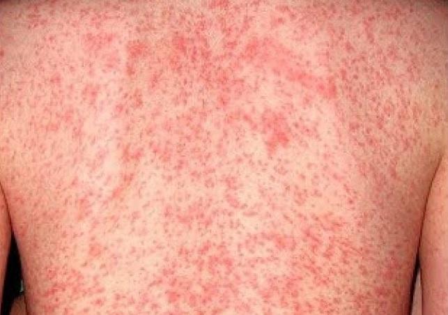 Novalgin allergische hautreaktion was tun