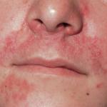 Juckender Hautausschlag im Gesicht