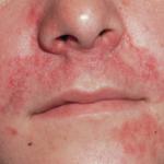 Bild: Allergie Symptom, Nase, Mund