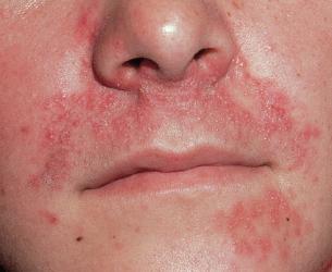 alkohol allergie rote flecken