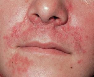 Alkohol Allergie Symptome Hautausschlag