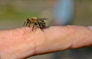 Bienenstichallergie