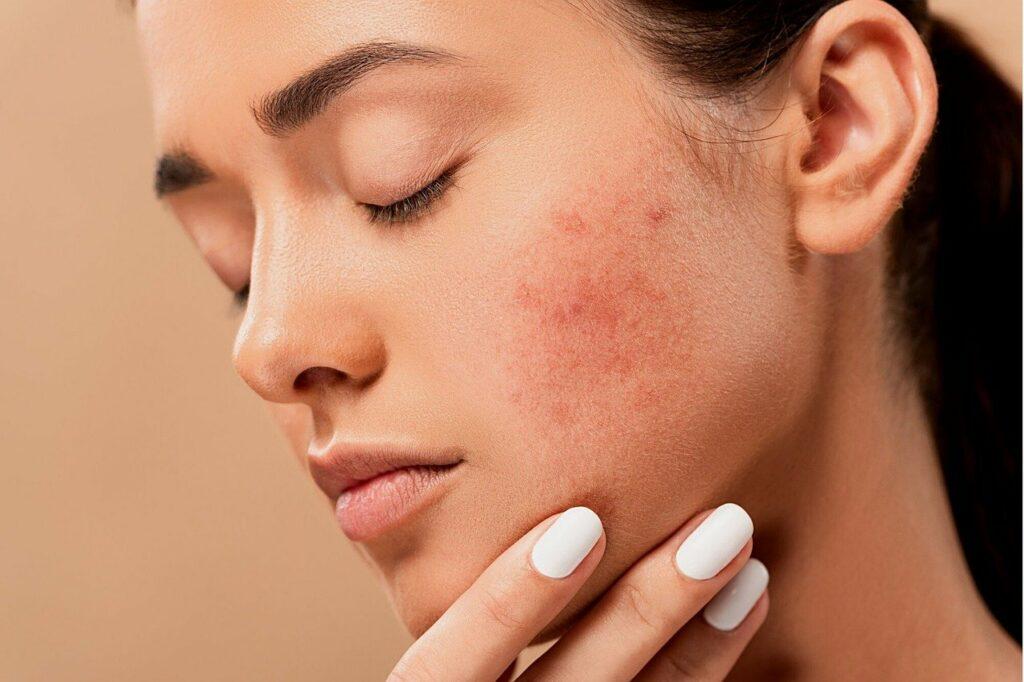 Was hilft bei allergischem Hautauschlag
